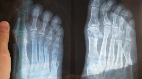 Сбитый пенсионером подросток сломал два пальца