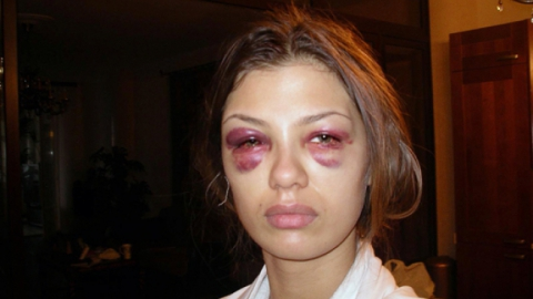 На рынке в Саратове муж избил бывшую жену