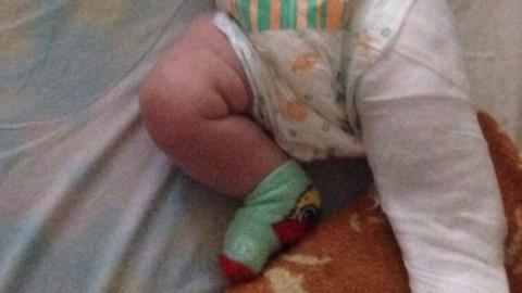 Массажистка сломала трехмесячному мальчику бедро во время сеанса