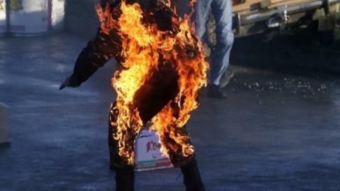 На школьнике из села под Саратовом загорелась одежда