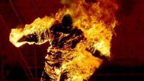 Мужчина пострадал из-за небрежного обращения с огнём