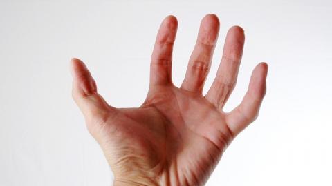 Мужчине ампутировали руку после застолья с вооруженным кочергой другом