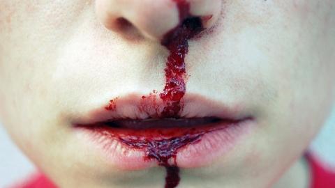 В Саратове охранник выбил зубы и порвал губу мужчине