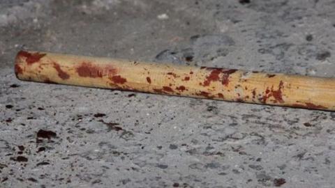 Подросток разбил саратовцу голову деревянной палкой