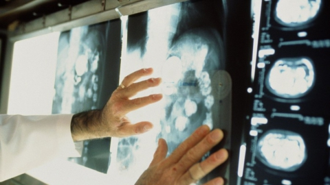 В Саратовской области стали лучше выявлять рак на ранней стадии