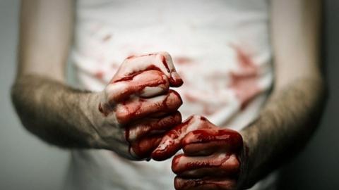В Петровске мужчина избил приятеля стеклянной бутылкой