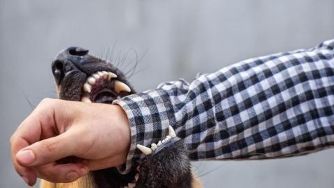 Администрацию обязали выплатить моральный вред покусанному собакой сельчанину