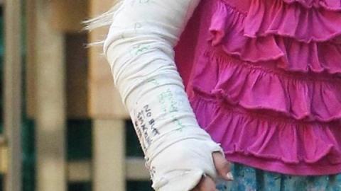 В лагере 8-летняя девочка получила  перелом предплечья