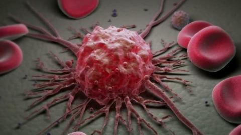 Рак с начала года унес жизни пяти тысяч саратовцев