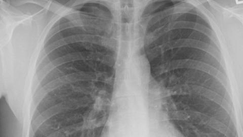 Приставы принудительно положили туберкулезника в больницу