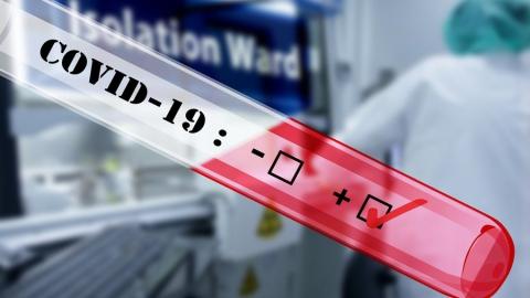 39 случаев коронавируса выявлено за сутки