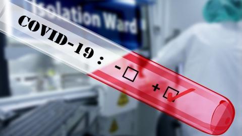 В Саратовской области провели 24,1 тысячи тестов на коронавирус