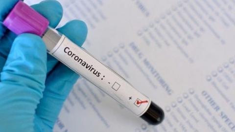 Сразу трое жителей Саратовской области умерли от коронавируса