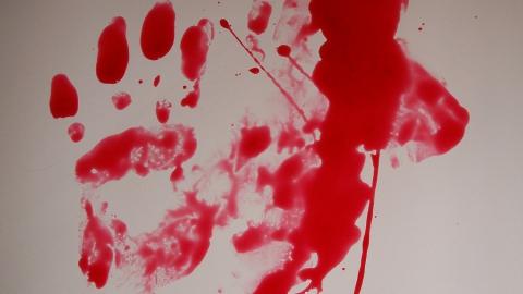 Врачи скорой помощи подтвердили смерть саратовца с перерезанным горлом | 18+