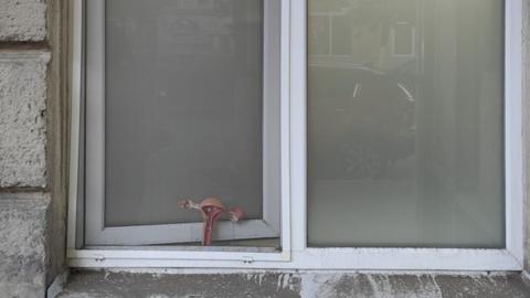 Саратовцев рассмешило наглядное пособие в окне женской консультации