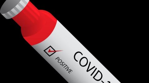 Заболеваемость коронавирусом медленно идет на спад