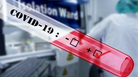 Количество новых случаев коронавируса продолжает держаться выше отметки в 100 человек