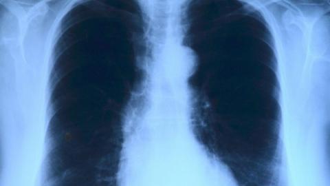 Саратовские медучреждения получат четыре КТ и 17 рентгеновских аппаратов