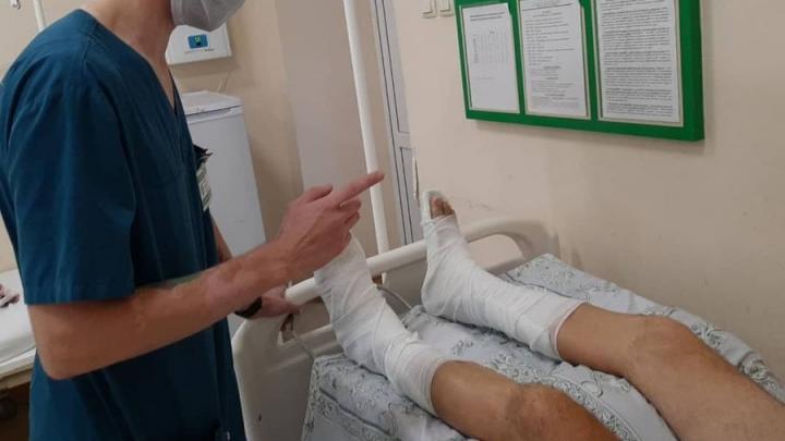 Саратовец сломал обе пятки при падении с лестницы