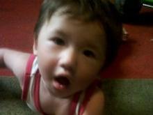 У годовалого малыша диагностирована церебральная ишемия второй степени